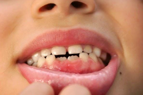 Infraocclusione dei denti decidui. Cosa vuol dire e quando si verifica?
