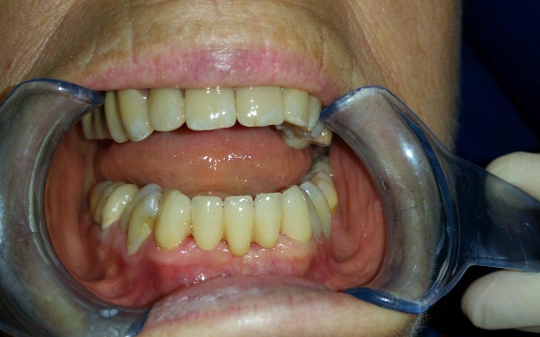 Parodontite e riabilitazione estetica: un caso reale