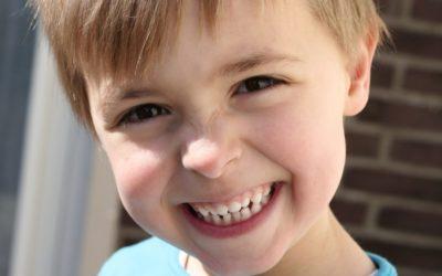 Macchie bianche sui denti dei bambini: cosa sono?